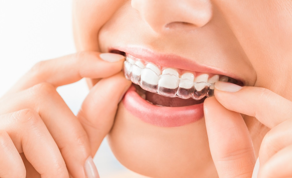 Achieve A Sparkling Smile By Using Invisible Aligners